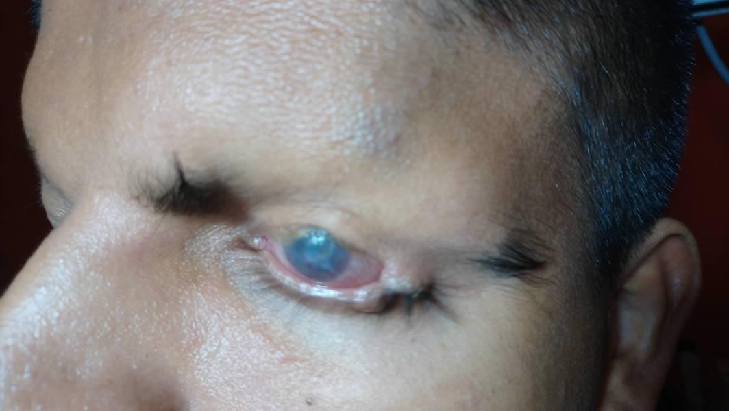 Pacientes de Visión El Salvador