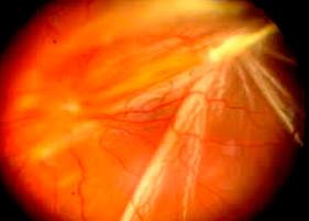 Enfermedades de los ojos en pacientes diabéticos