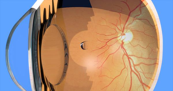 Hablemos del Desprendimiento de Retina