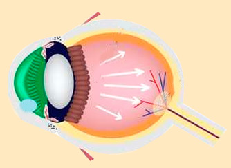 ¿Qué es la Glaucoma?